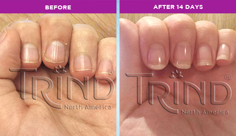 The Science behind Trind for strong, flexible nails